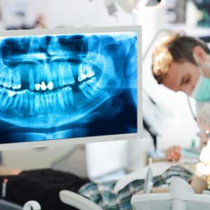 Röntgenologické vyšetrenie